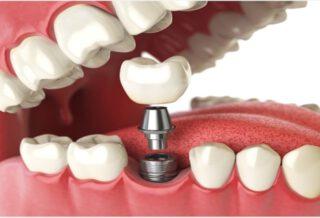 oral implantology definition