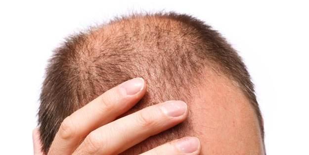 Baldness Remedies