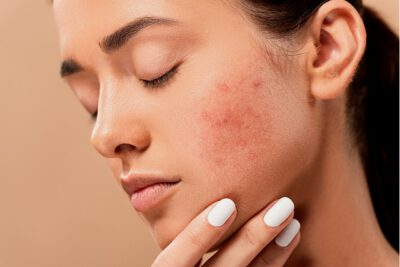5 Great Ways To Remove Acne With CBD Oil