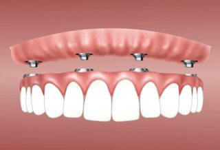 Benefits Of ALL-ON-4 Dental Implants